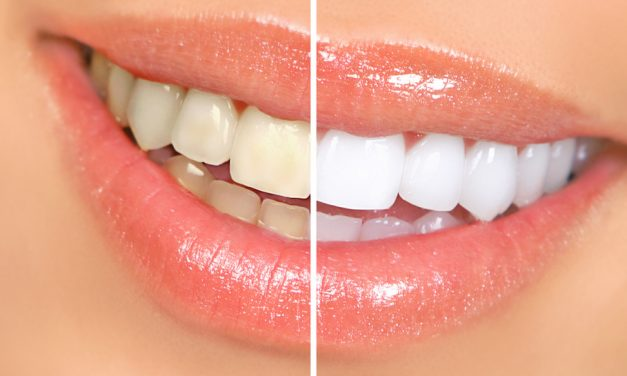 Whitening teeth – Teeth Bleaching