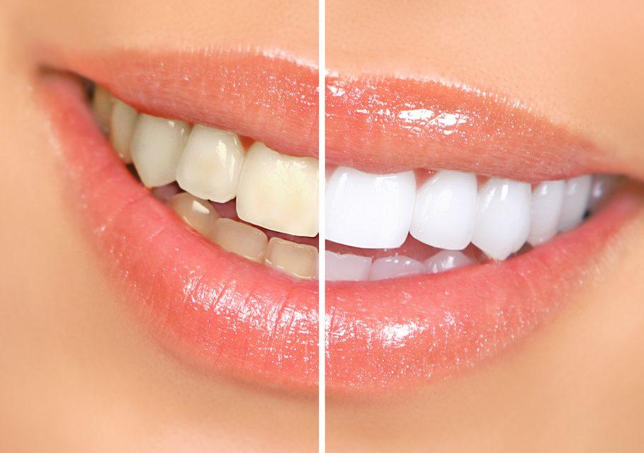 Whitening teeth – Teeth Bleaching