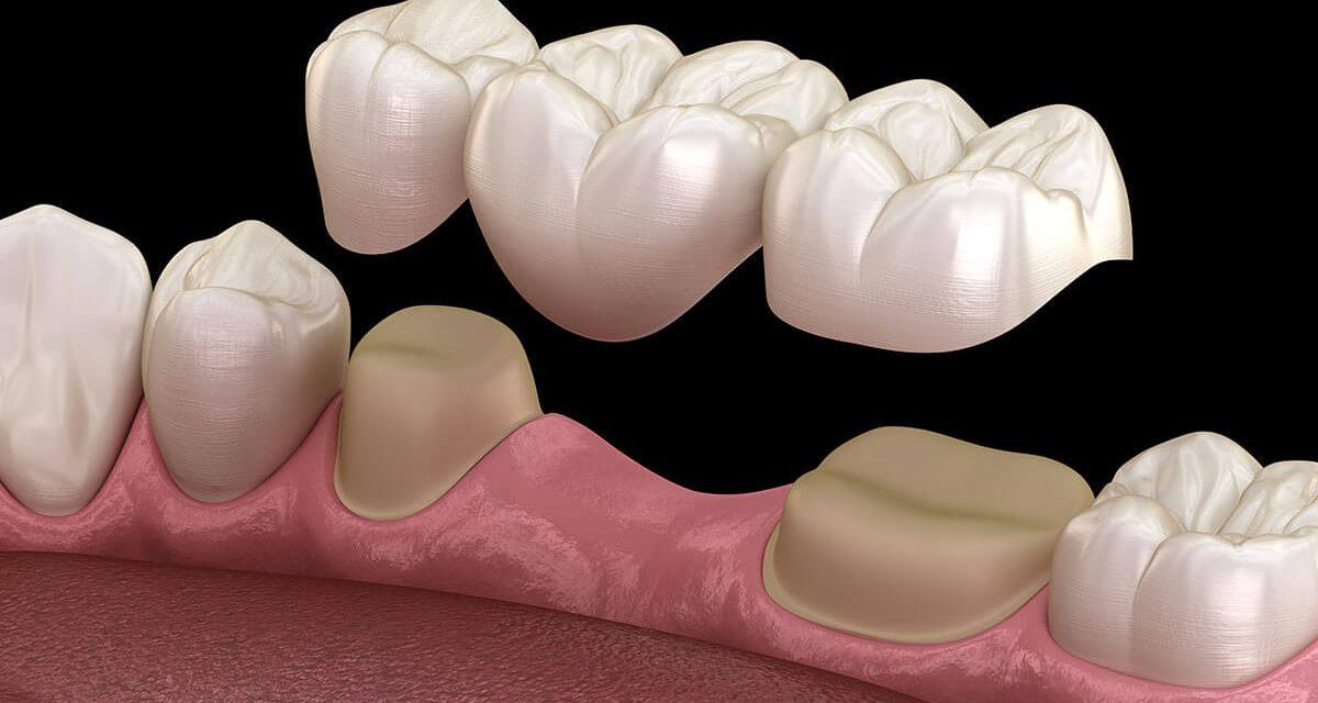 A dental bridge replaces missing teeth