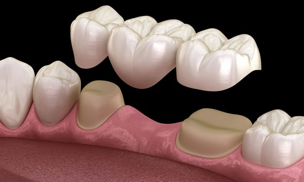 A dental bridge replaces missing teeth