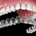 Dental Aligner