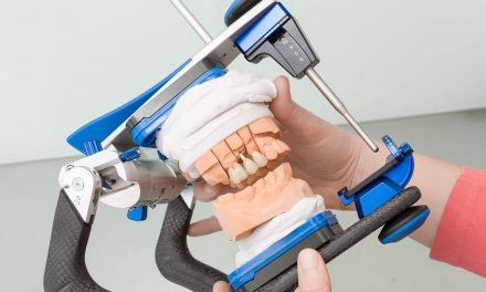 What is an Articulator and how is it used in dentistry?