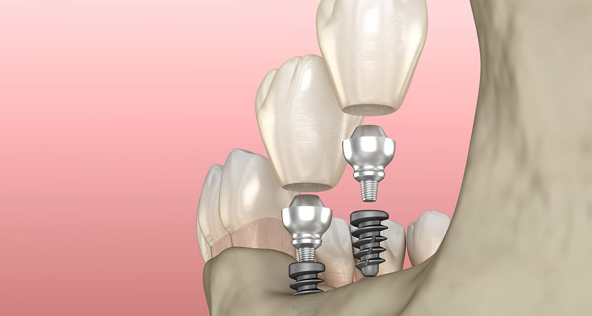 Dental implants – the way to a perfect smile and a firm bite