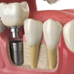 Dental Bridge, prosthesis or implant – THE BEST OPTION FOR YOU