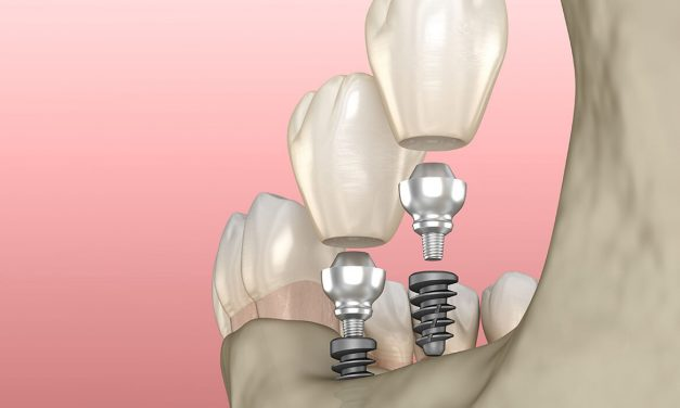How to clean your dental implants like a pro