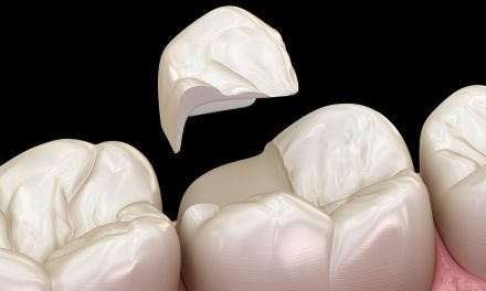 Cavity in a tooth? Inlay or onlay? Which one will help?