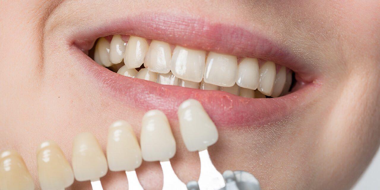 Laughing teeth show: Veneers make even cloudy teeth shiny again!