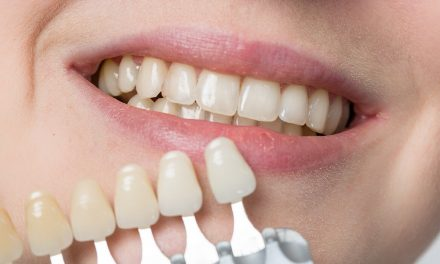 Laughing teeth show: Veneers make even cloudy teeth shiny again!