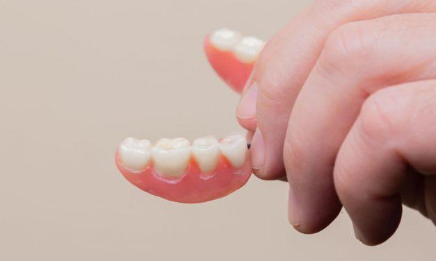 Vertical Dimension Increase: Dentures as complete Restorations