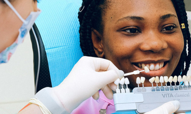 Veneers for Beautiful Teeth: Six Facts You Should Know.
